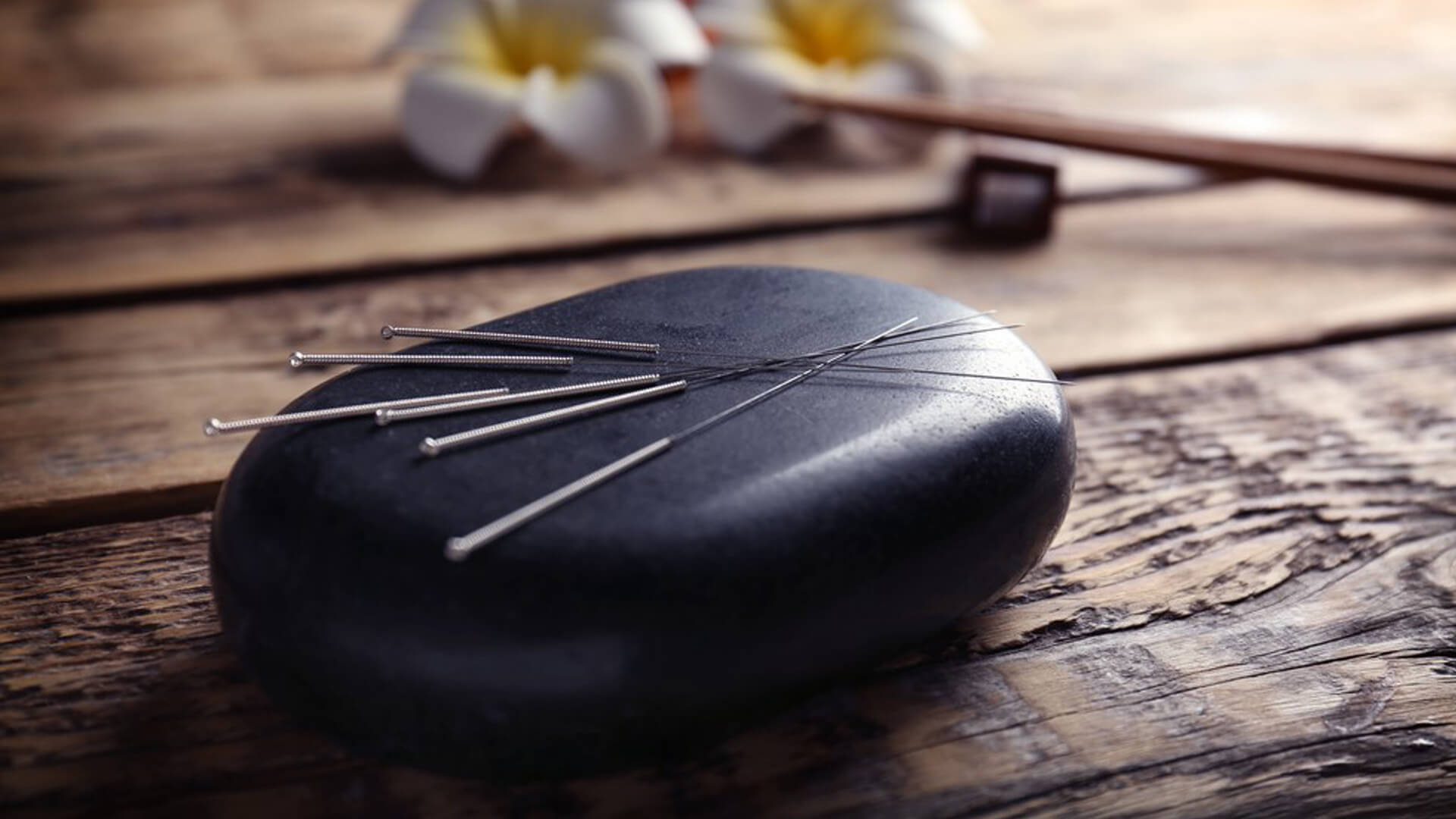 Acupunture Relives Workplace Stress and Pain